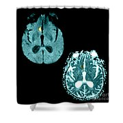 Mri Of Stroke Shower Curtain