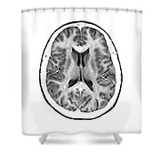 Normal Cross Sectional Mri Of The Brain Shower Curtain