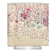 Normal Stellate Cells Shower Curtain