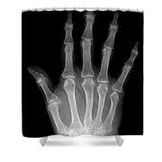 Osteoporosis And Degenerative Arthritis Shower Curtain