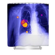 Pacemaker Shower Curtain