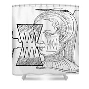Par� Suture, 1500s Shower Curtain by Science Source