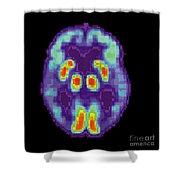 Pet Scan Of Alzheimers Disease Brain, 2 Shower Curtain