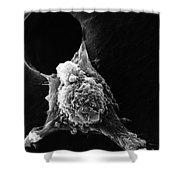 Pseudopodia Sem Shower Curtain by Science Source