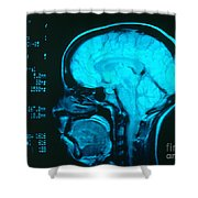 Radiology Angiography Of Brain Shower Curtain