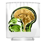 Sagittal View Of An Mri Of The Brain Shower Curtain