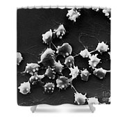Sem Of Blood Cells In Sheep With Kidney Shower Curtain by Science Source