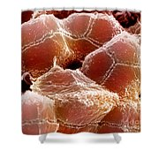 Sem Of Liver Shower Curtain by Science Source