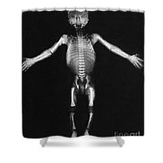 Skeleton Of A Baby Shower Curtain