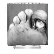 Syphilis Ulcer Shower Curtain