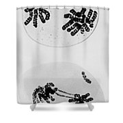 Tem Of Radiation Damage To Chromosomes Shower Curtain