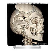 Three-dimensional Ct Reconstruction Shower Curtain