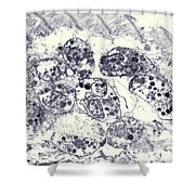 Toxoplasmosis Of Heart In Aids Tem Shower Curtain by Science Source