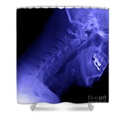 X-ray Of A Cervical Spine Shower Curtain