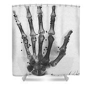 X-ray Of A Hand With Buckshot Shower Curtain