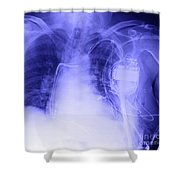 X-ray Of A Pacemaker Shower Curtain