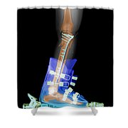 X-ray Of Broken Bones In Ski Boot Shower Curtain