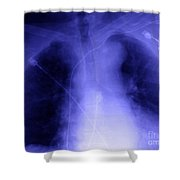 X-ray Of Implanted Defibulator Shower Curtain