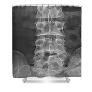 X-ray Of Lower Lumbar Spine Shower Curtain