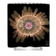 X-ray Of Shingle Urchin Shower Curtain