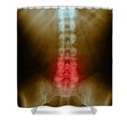 Compression In Lumbar Vertebrae Shower Curtain by Science Source