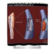 Deep Vein Thrombosis, Illustration Shower Curtain