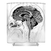 Normal Brain, Mri Shower Curtain