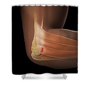 Tennis Elbow Shower Curtain