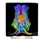 Brain Fiber Tracts, Dti Scan Shower Curtain