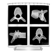 Human Vertebra T5, X-ray Shower Curtain
