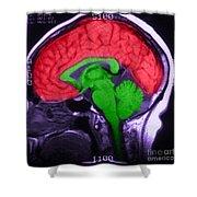 Mri Of Normal Brain Shower Curtain