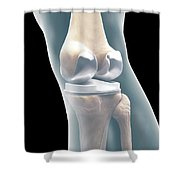 Knee Replacement Shower Curtain