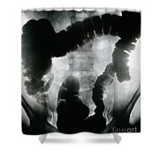 Amoebiasis, X-ray Of Colon Shower Curtain