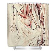 An Unexpected Visit Shower Curtain