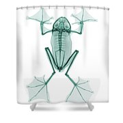 An X-ray Of A Flying Frog Shower Curtain