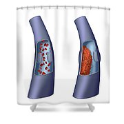 Deep Vein Thrombosis, Illustration Shower Curtain
