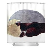Enlarged Spleen With Infarct Shower Curtain