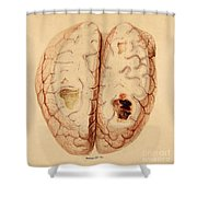 Extravasated Blood, Brain Shower Curtain