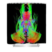Fiber Tracts Of The Brain, Dti Shower Curtain