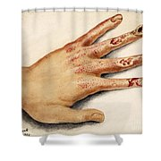 Hand With Roentgen Ray X-ray Shower Curtain
