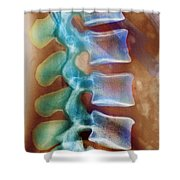 Healthy Lower Spine X-ray Shower Curtain by SPL and Photo Researchers