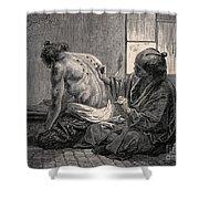 Japanese Physician Applying Moxa Shower Curtain