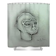 Jim The Man Born Without Hair Follicles Alopecia Universalis  Shower Curtain