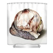 Large Hyatid Cyst In Spleen Shower Curtain