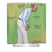 Man With Parkinsons Disease Shower Curtain