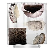 Melanoma, Blood And Stomach Shower Curtain