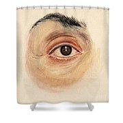 Melanoma Of Iris, Medical Illustration Shower Curtain
