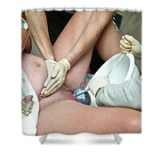 Midwife Removing Afterbirth Shower Curtain