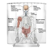Multiple Sclerosis Symptoms Shower Curtain