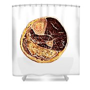 Muscle Degeneration, Fibrosis And Fat Shower Curtain